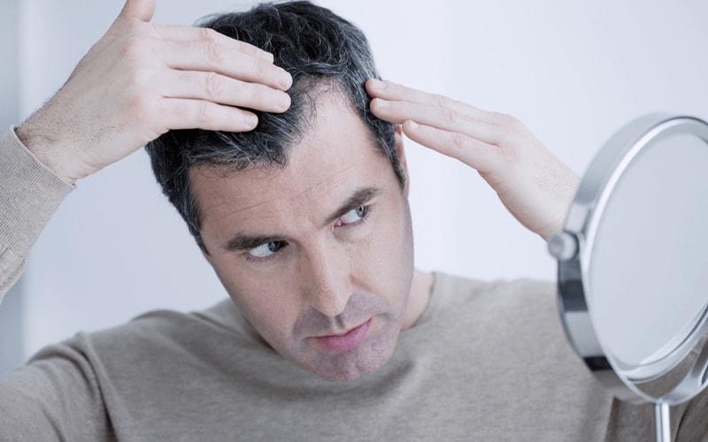 عوامل ریزش مو و درمان آن