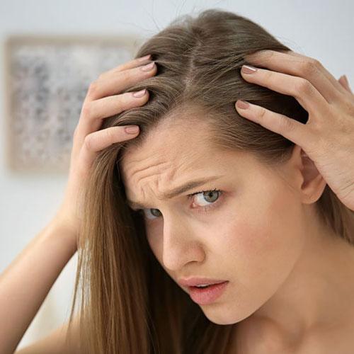 راهکارهای درمان گیاهی ریزش مو